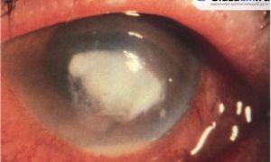 Язва роговицы: симптомы и лечение заболевания