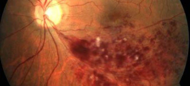 Диагноз – ПХРД сетчатки глаза: что это такое, причины и степени