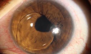 Вывих хрусталика глаза у человека: причины, симптомы и лечение