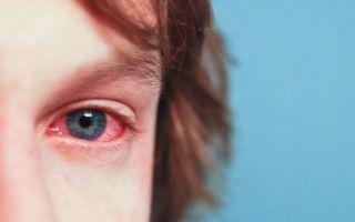 Лучшие мази от аллергии на глазах у взрослых и детей