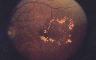 Отёк макулы глаза: симптомы и лечение, народные средства