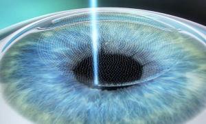Лазерная коррекция астигматизма: лечение зрения через операцию