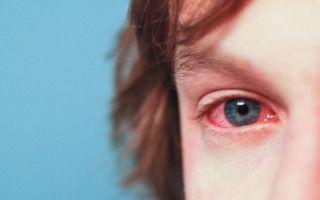 Аллергия на глазах у ребенка: причины, лечение, капли