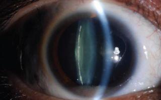 Факосклероз хрусталика глаза: что это такое, диагностика и лечение