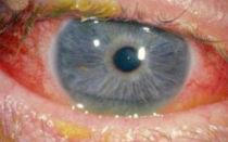 Грибковый конъюнктивит: симптомы и как лечить