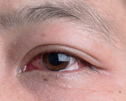 Ирит: причины, симптоматика, диагностика и терапия