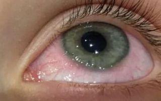 Самые эффективные капли для глаз от аллергии взрослым и детям