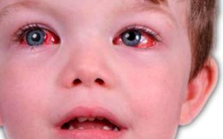 Вирусный конъюнктивит глаз у ребёнка: как и чем лечить