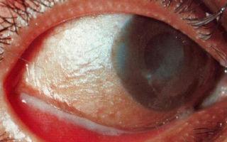 Синдром сухого глаза: причины и как избавиться
