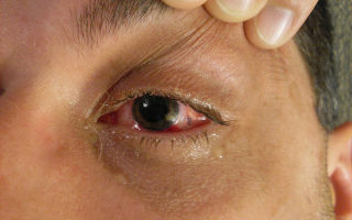 Отслоение сетчатки глаза: что это, признаки, лечение и операция