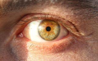 Что делать при тонкой роговице глаза: причины и коррекция зрения