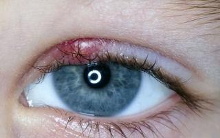 Ячмень на глазу при беременности: как и чем лечить