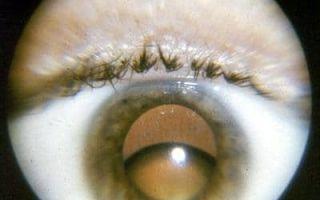 Подвывих хрусталика глаза: причины, симптомы и лечение