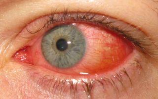 Кератоконъюнктивит у человека: что это и как лечить