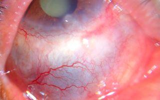 Склерит (воспаление склеры): диагностика, лечение и профилактика