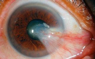 Птеригиум или нарост на роговице: лечение заболевания