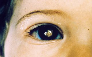 Ретинобластома глаза у взрослых и детей: симптомы, лечение и прогноз