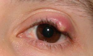 Удаление халязиона лазером: особенности лечения