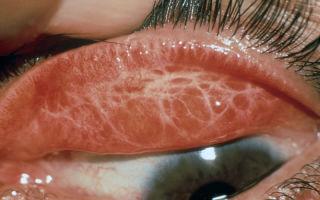 Трахома глаз у человека: что это такое, симптомы и лечение