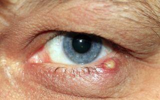 Ячмень на глазу: что это такое, симптомы, чем и как лечить