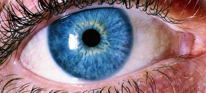 Синдром ленивого глаза (амблиопия): что это такое, лечение