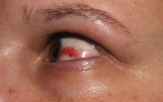 Кровоизлияние в сетчатку глаза: причины, виды и лечение