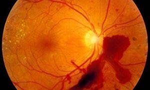 Фоновая ретинопатия у взрослых и новорожденных детей – что это такое