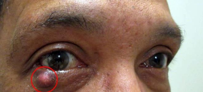 Халязион на глазу: что это такое, как и чем лечить это заболевание