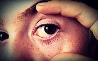 Из-за чего может исчезнуть зрение? Виды слепоты и её причины