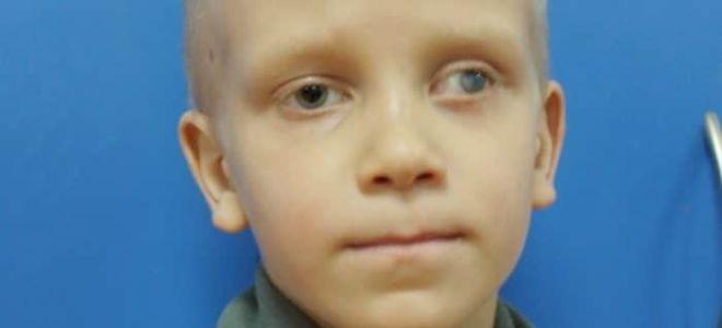 Глиома зрительного нерва у детей и взрослых: симптомы и лечение