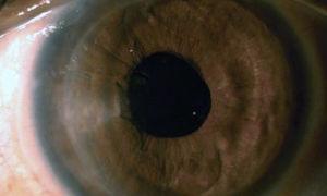 Отёк роговицы глаза: симптомы и лечение