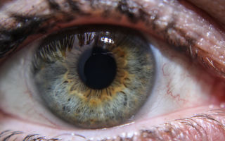 Гетерохромия глаз у людей: что это такое, офтальмологическая патология или магическая загадка природы?