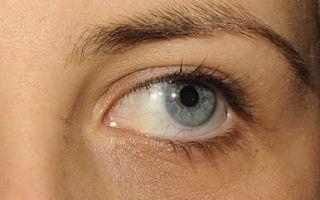 Упражнения при косоглазии: полезная гимнастика и зарядка для глаз