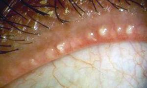 Мейбомиевый блефарит: симптомы и лечение