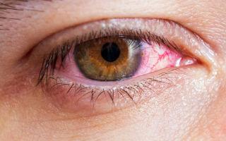 Катаральный конъюнктивит: симптомы и лечение
