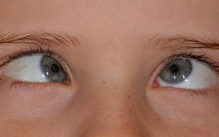 Лечение косоглазия в домашних условиях у взрослых и детей