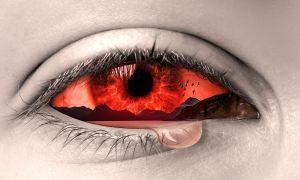 Ожог слизистой глаза: симптомы, первая медицинская помощь и лечение
