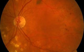 Макулярный отек сетчатки глаза: симптомы, причины и лечение