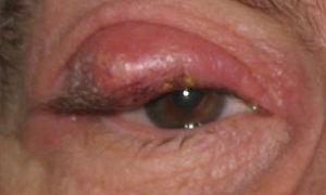 Халязион верхнего века: причины, лечение без операции и удаление