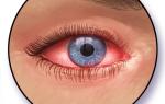 Аллергия на глазах и веках: причины, симптомы и лечение