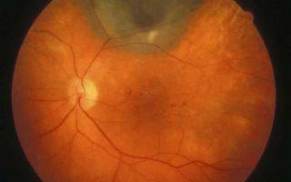 Отек сетчатки глаза: симптомы и виды, причины и лечение