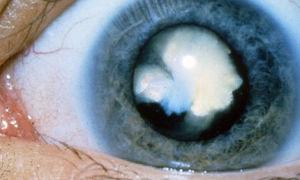 Осложненная вторичная катаракта: лечение обоих глаз