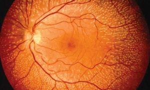 Ретинопатия глаз у недоношенных детей: что это и как лечить
