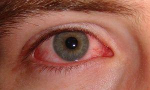 Воспаление роговой оболочки глаз (кератит): что это такое и как лечить