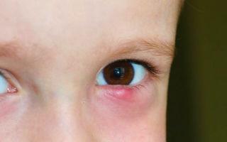 Блефарит у детей: симптомы и лечение у ребенка