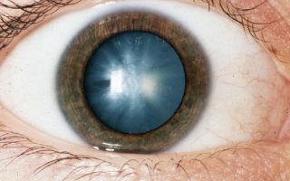 Причины возникновения катаракты глаз у взрослых и детей
