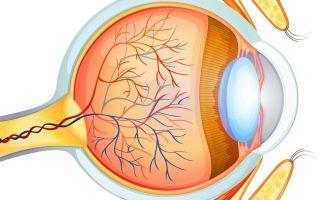 Атеросклероз сетчатки глаза: что это такое, симптомы и лечение