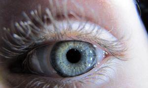 Ожог слизистой глаза после наращивания ресниц: как и чем лечить