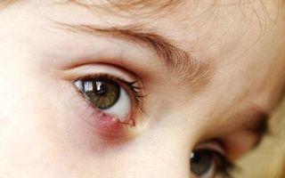 Ячмень на глазу у ребенка: что делать, как и чем лечить детей