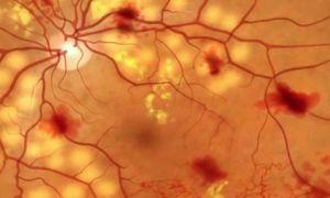 Диабетическая ретинопатия: что это такое, симптомы, лечение и стадии